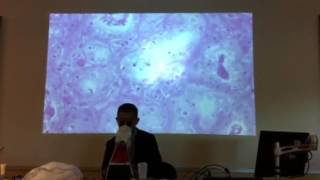 AP2 Histology Lactating Mammary