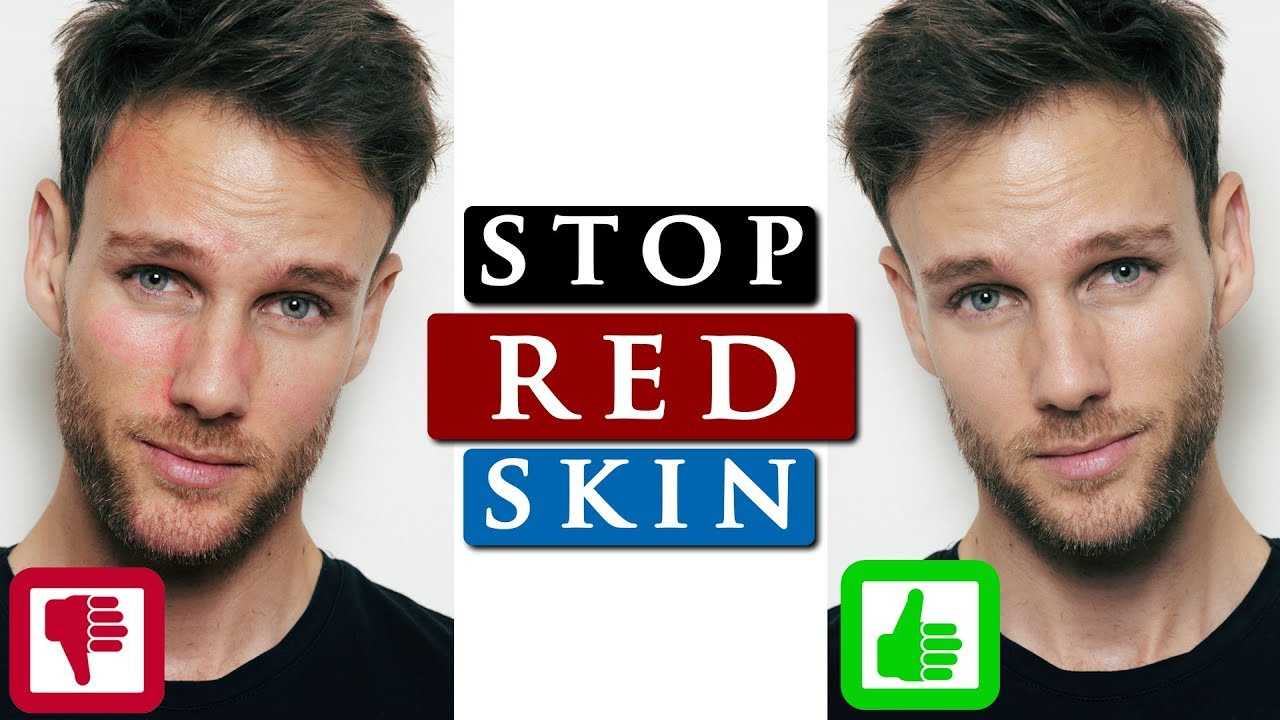 How To Get Rid Of Redness On Your Face 3 Skin Care Tips Youtube