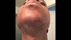 Facial hair/ Hirsutism/PCOS: Electrolysis update 1