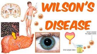 Wilson's Disease!