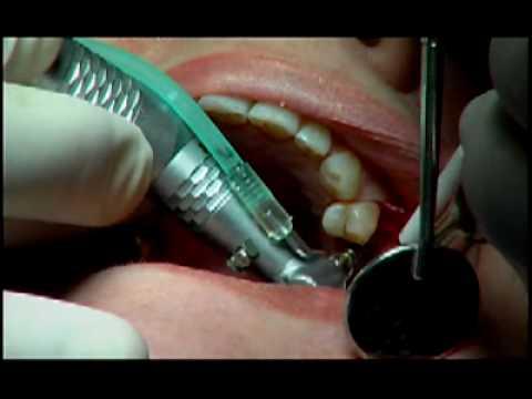 Implant Dentistry at White Wolf Dental in Port Orange
