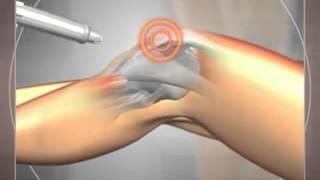 Лечение коленного сустава. Ударно-волновая терапия (УВТ)(Техника лечения коленного сустава с помощью ударно-волновой терапии (УВТ). Безоперационный метод., 2014-08-30T12:08:01.000Z)