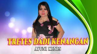 Top Hits -  Tretes Dadi Kenangan Ayuni Kenes Official