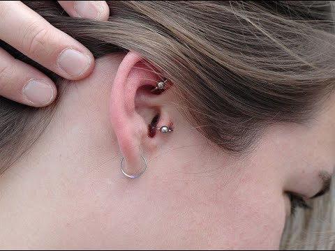 Heal an infected ear piercing - Learn how to Clean an Infected Ear Piercing to Heal Naturally
