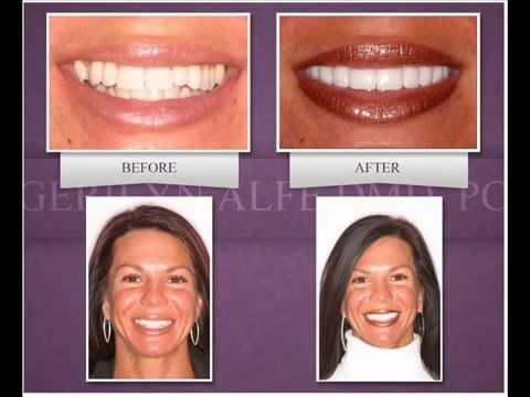 Weisse Zähne Durch Eine Zahnblende Für Ein Perfektes Aussehen Zahnblendede