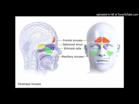 Treating chronic sinusitis
