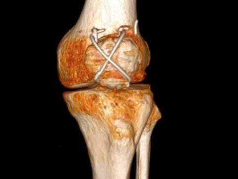 Patellar Facture - Figure of 8 : tension band wiring