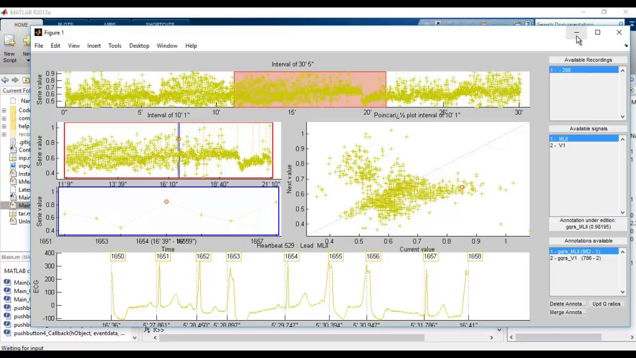 ECG CLASSIFICATION RECURRENT NEURAL NETWORK MATLAB PROJECTS