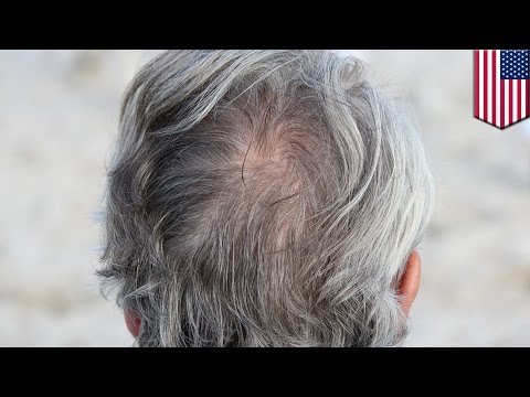 Baldness cure: Scientists may have found cure for gray hair and baldness by accident - TomoNews