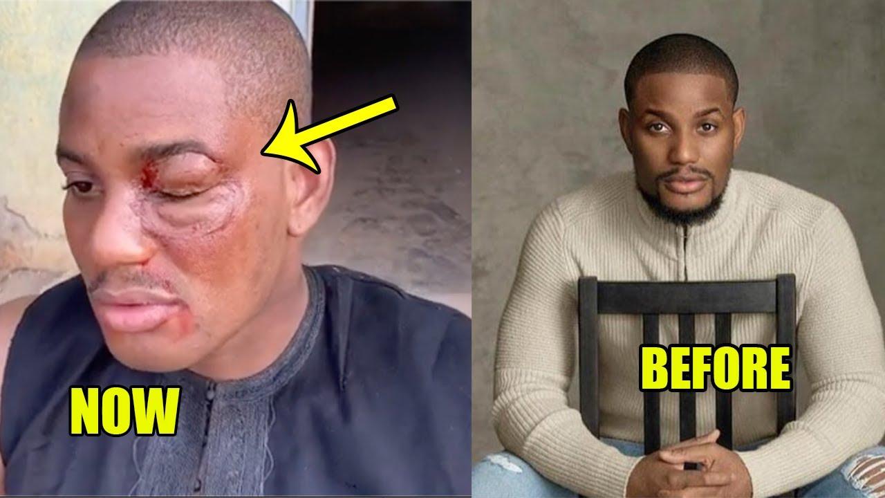 Download Pray For  This Nigerian Actor Alex Ekubo... He's loosing His Eye