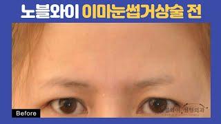 이마거상술효과, 처진눈매가 시원하고 또렷한 눈매로! (…