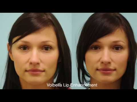 Volbella Follow Up Results and Commentary in Dallas