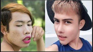 """Sau phẫu thuật, Tùng Sơn lột xác thành """"nam thần"""""""