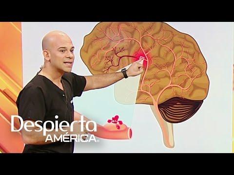 La aneurisma por que produce cerebral se