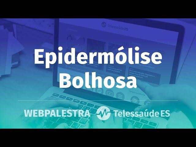 WebPalestra: Epidermólise Bolhosa