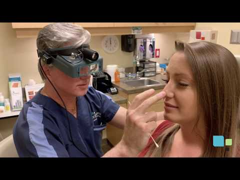 How to Clean Your Nostrils after Rhinoplasty