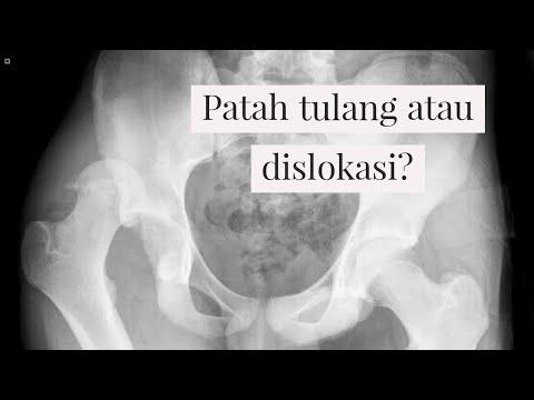 Download Patah tulang pinggul atau dislokasi, pilihan solusinya