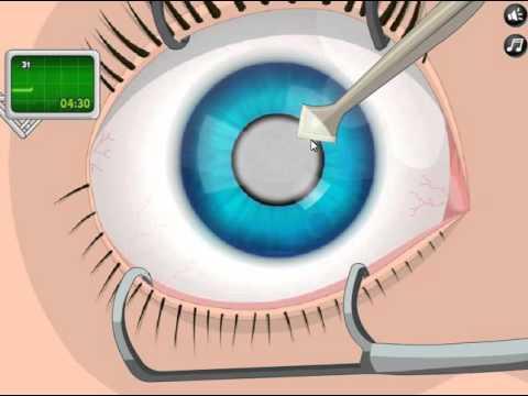 operate now: операция на глазу!