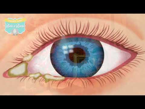 que son las lagañas de los ojos