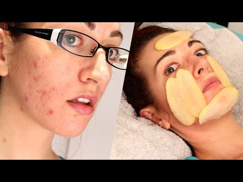 ✔ HOW TO: FADE ACNE SCARS WITH... POTATO?! Natural Mild Scarring Treatment!