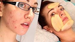 hqdefault - Sweet Potato Acne Scars