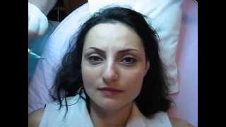 Tatuaj ochi tatuaj semipermanent ochi micropigmentare ochi Zarescu Dan http://www.machiajtatuaj.ro