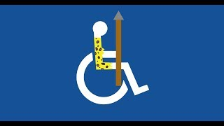 Disabilities in Prehistory