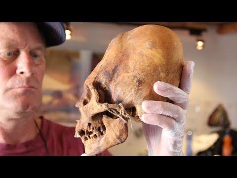 Elongated Skulls In The Juan Navarro Museum In Paracas Peru