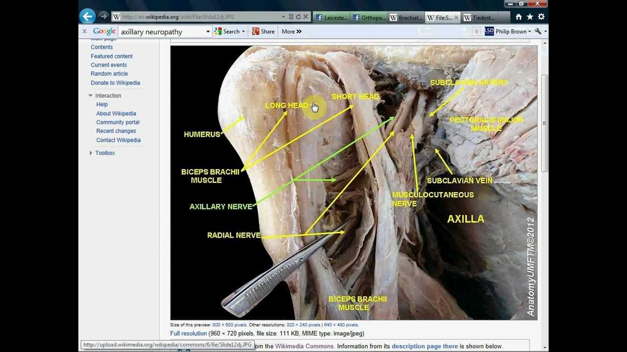 Axillary Nerve Lesion Youtube