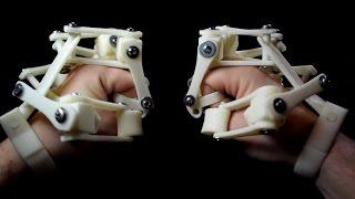 3D Printed Exoskeleton thumbnail