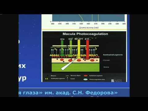 Малиновская М.А. Современные технологии лазерного лечения диабетического макулярного отека...