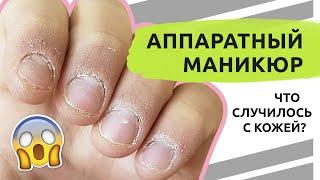 Что СЛУЧИЛОСЬ с кожей Аппаратный маникюр