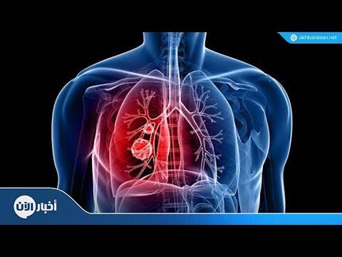 إنجاز طبي جديد لمعالجة سرطان الرئة  - 23:54-2018 / 11 / 12
