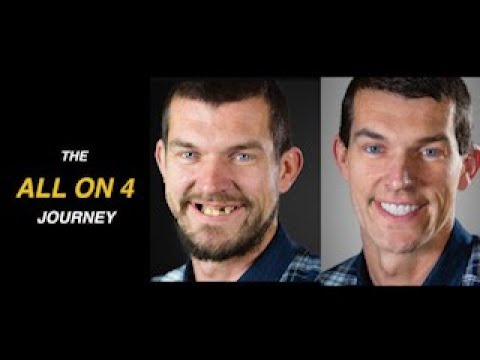 All on 4 Patient Journey | Amazing Transformation