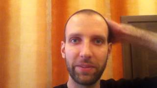 Day 129 Hair Regrowth with Rogaine Minoxidil 5%