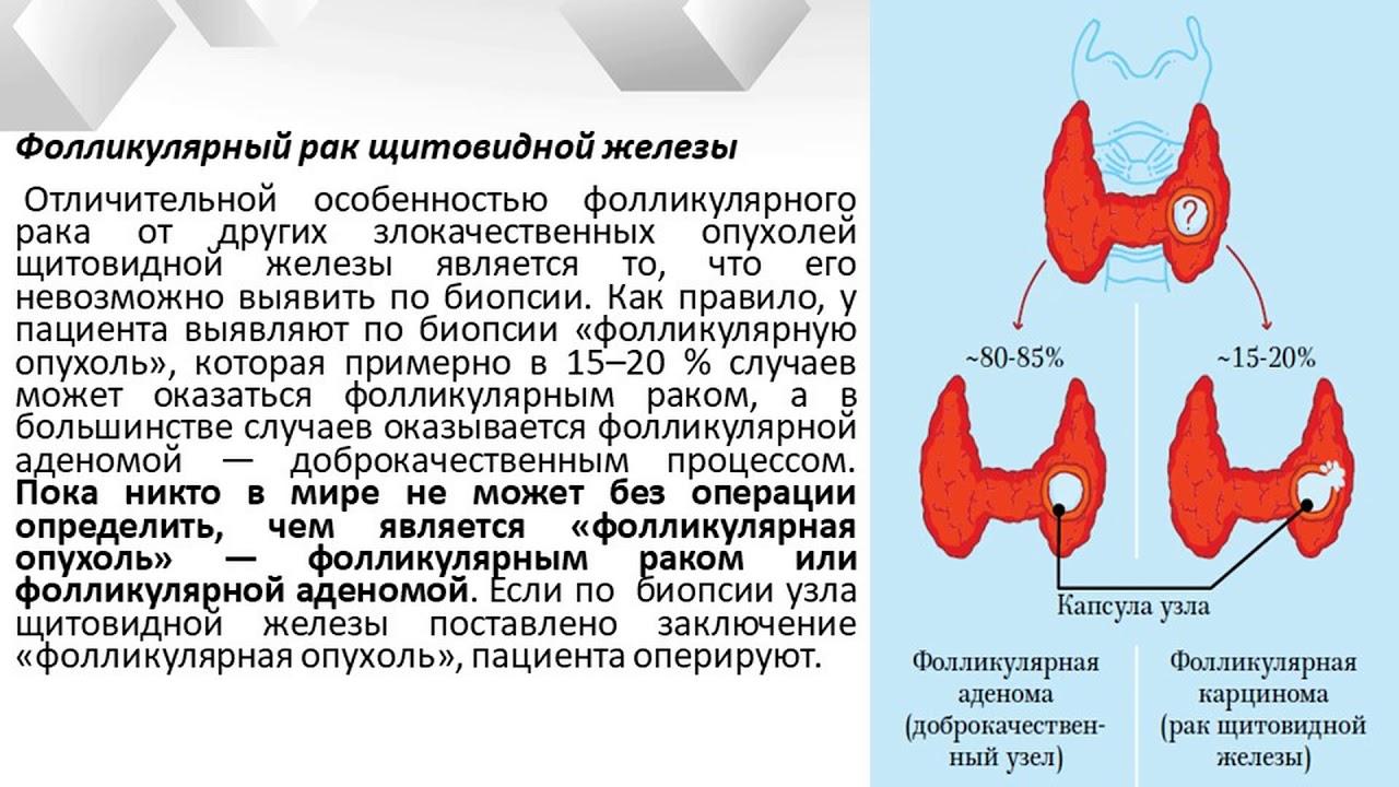 Фоликулрный рак щитовидной железы прогноз после операции отзывы