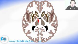 Lessons And 3D Anatomy Software: Horizonta Section Of Brain