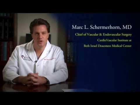 Treating Abdominal Aortic Aneurysm