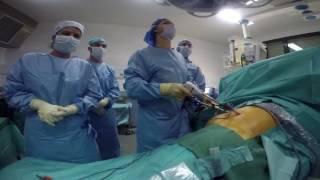 Ablation de la rate en ambulatoire : une première réalisée au CHRU de Lille
