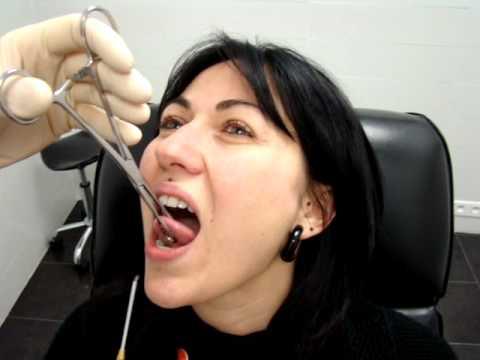 Piercing langue par oxxo