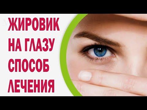 Жировик на глазу: выбираем способ лечения