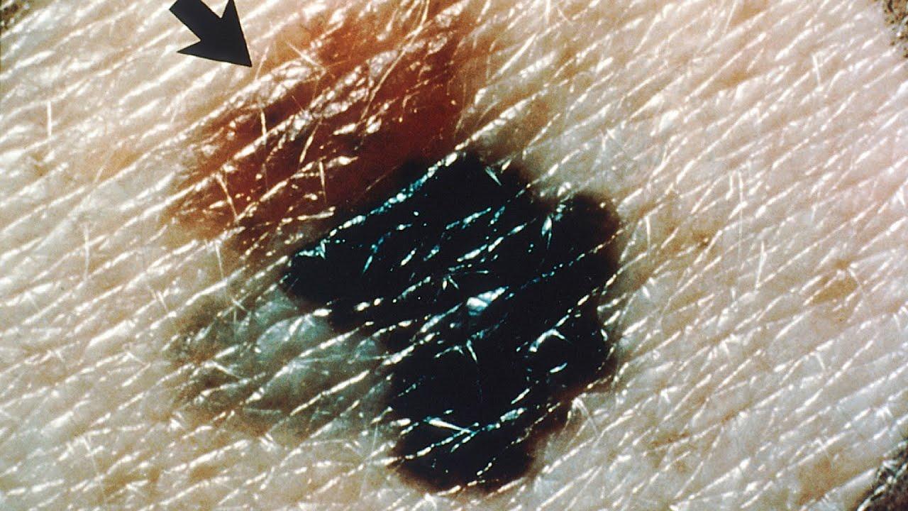 Melanoma Signs  U0026 Symptoms
