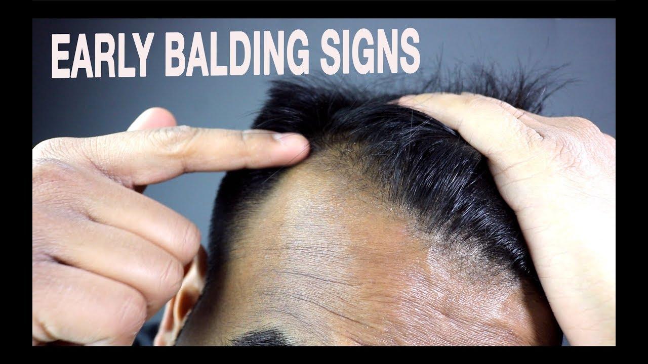 mature hairline mistaken for baldness