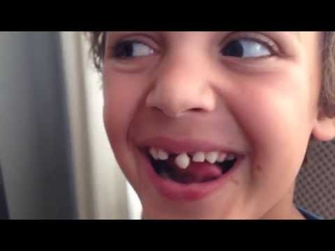Loose Tooth Pulling Fail