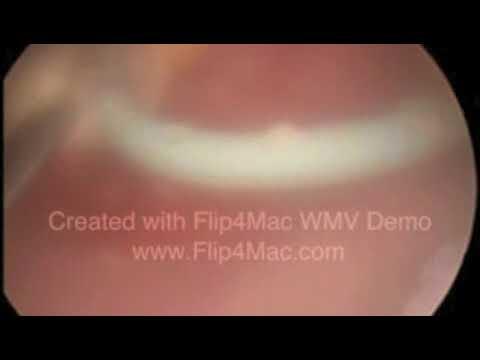 Duplo J Calcificado 2012 Youtube
