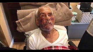 91-åring angrepet med murstein