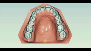 Элайнеры для выравнивания зубов - лечение прикуса без брекетов(, 2016-07-01T11:53:57.000Z)