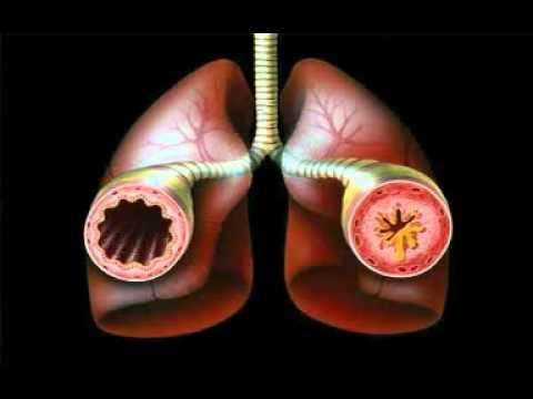 Мононуклеоз. Симптомы и лечение инфекционного мононуклеоза