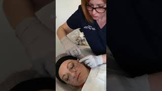 Live Demo: Teosyal Dermal Filler for the Mid Face thumbnail