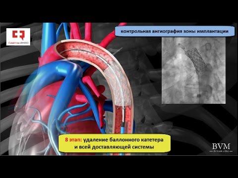 Коарктация аорты: у новорожденных, симптомы, лечение - важно
